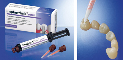 implantlink_semi