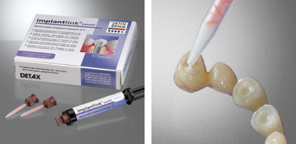implantlink_semi_forte