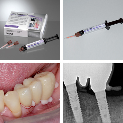 implantlink_semi_xray